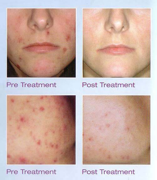 Acne Laser Treatments Before & After