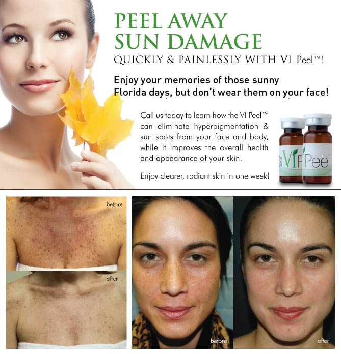 VI Peel Before & Afters*