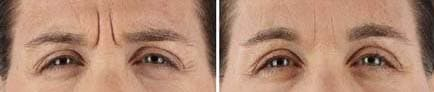 Xeomin Brow Results
