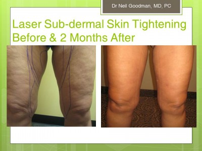 Liposuction for Cellulite Reduction