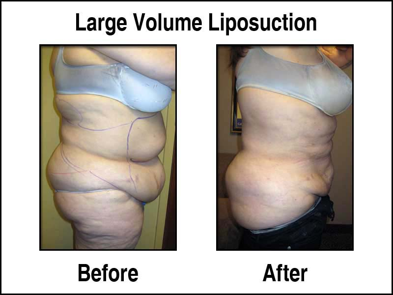 Large Volume Liposuction - Before and After