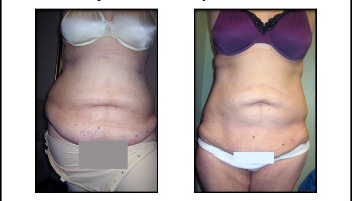New Radiance Large Volume Liposuction Photos