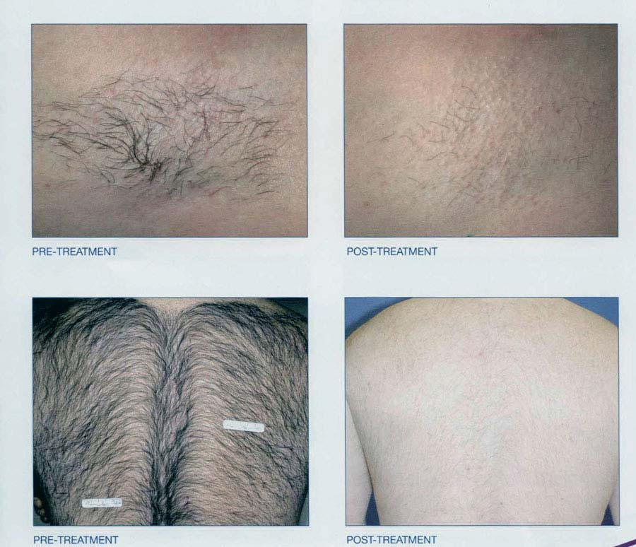 Laser Hair Removal New Radiance Cosmetic Center Of Palm Beach