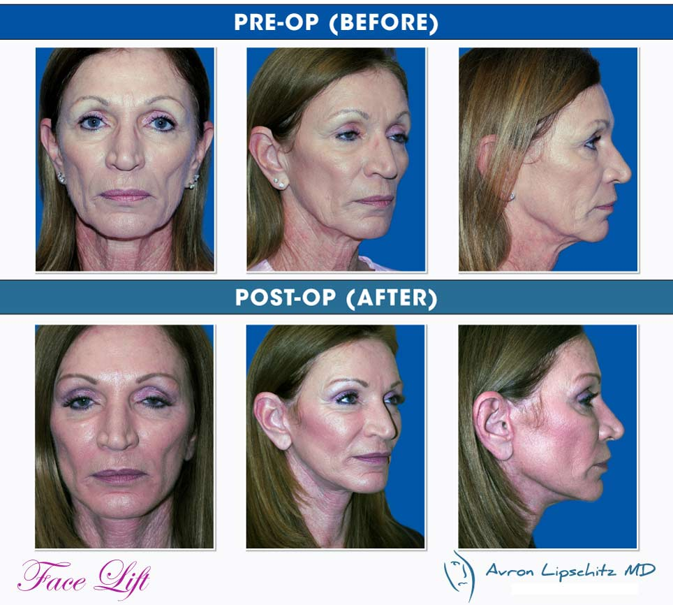 Face Lift - Avron Lipschitz