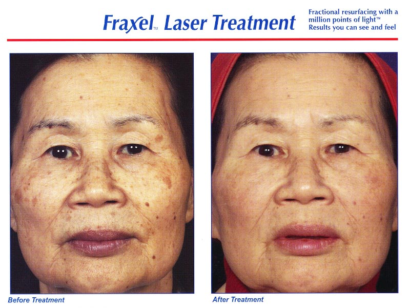 Fraxel face 2