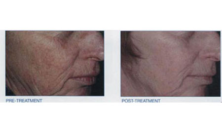 intense pulsed light - Before and After 3