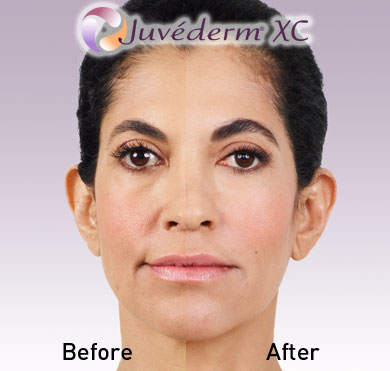 juvedermBeforeAfter1