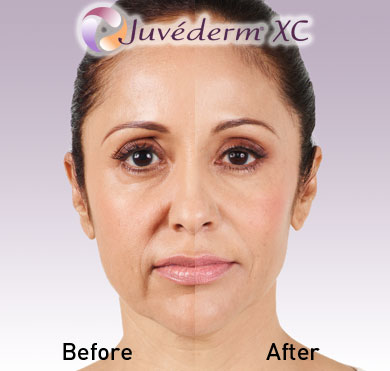 Juvederm Before After 4