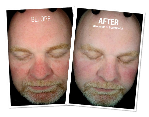 Hydrafacial - Before and After 2