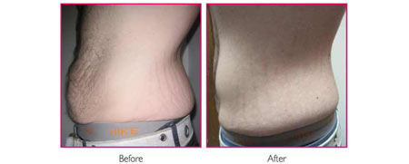Viora Body 2 - Before and After