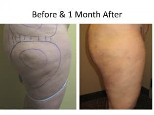 Liposuction for Cellulite