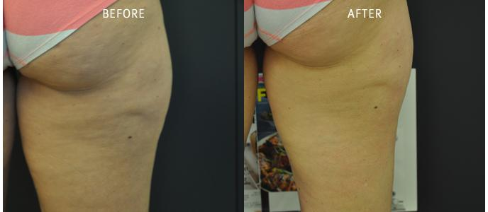 Exilis Ultra Before and After buttocks