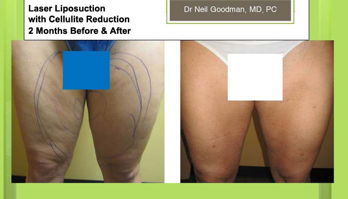 Laser Liposuction with Cellulite Reduction of woman 2 Months