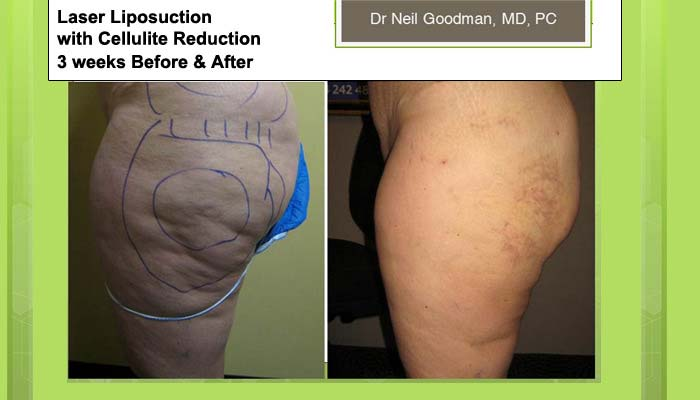 Laser Liposcution with Cellulite Reduction