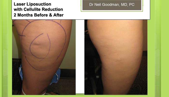 Laser Liposuction with Cellulite Reduction of woman after 2 Months