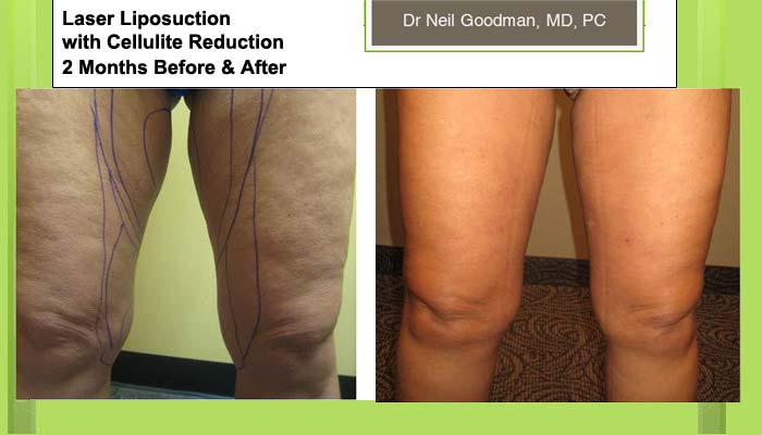 Laser Liposuction with Cellulite Reduction woman 2 Months
