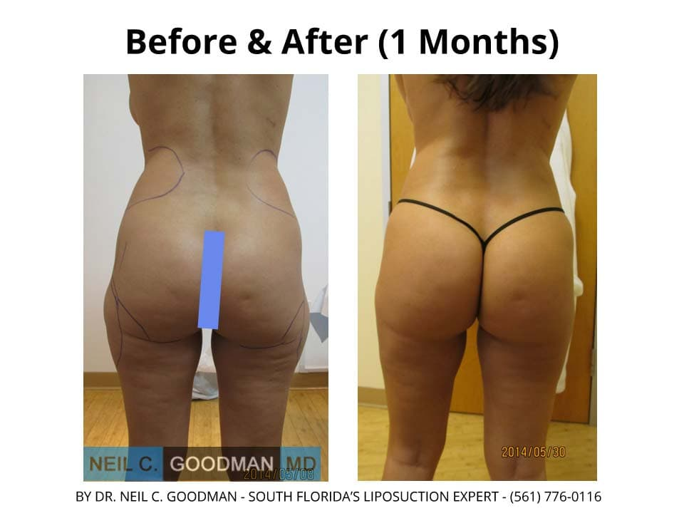 Brazilian Buttlift results Before & after 1 month