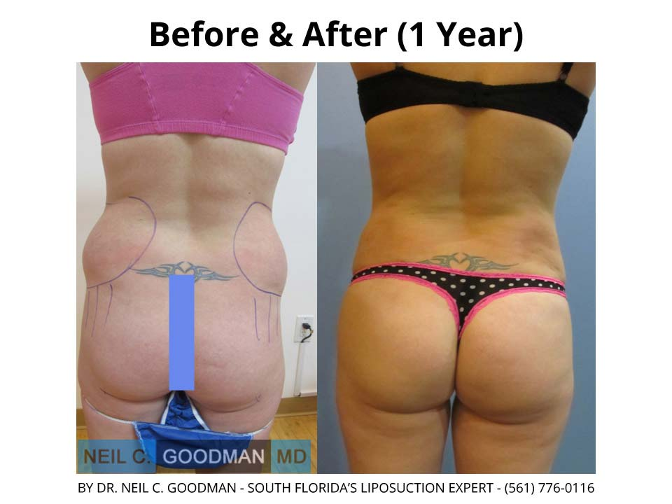 Brazilian Buttlift Women