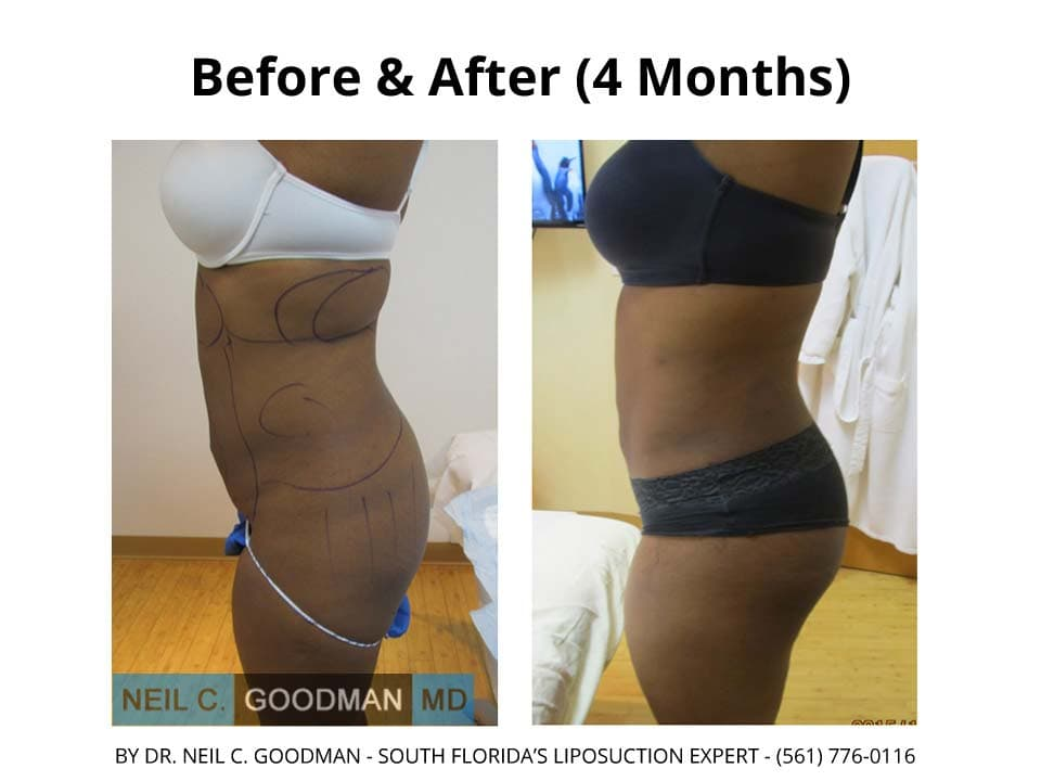 Liposuction photo2