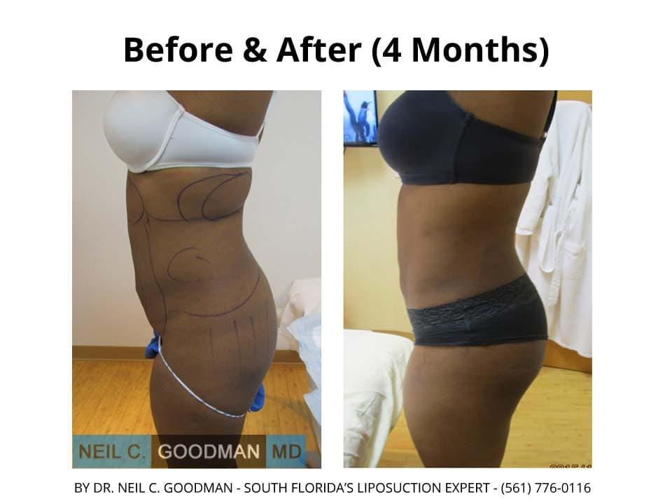 Liposuction photo2