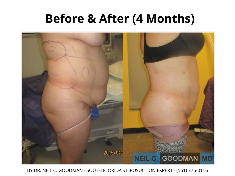 Large Volume Liposuction for woman 4 Months