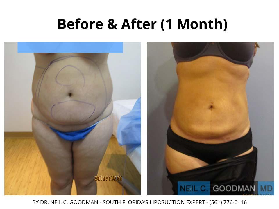 Large Volume Liposuction woman