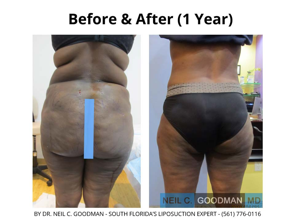 Large Volume Liposuction woman 1 Year