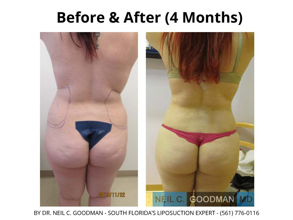 Large Volume Liposuction woman 4 Months
