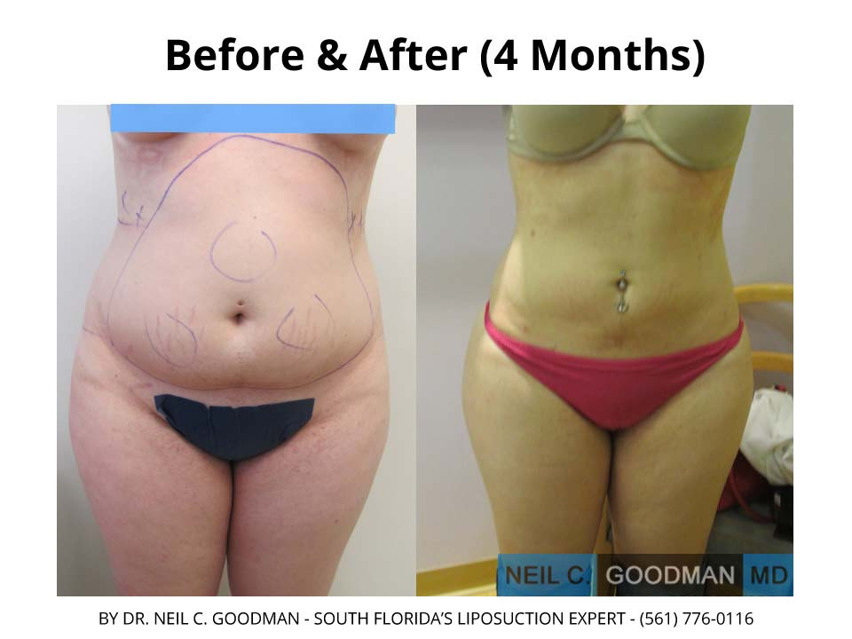 Large volume Liposuction results of before and after