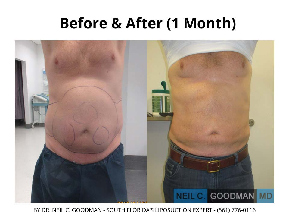 Large volume Liposuction Male results