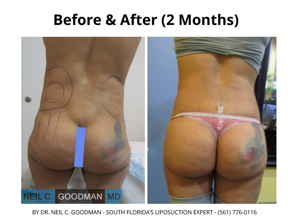 Brazilian Buttlift before and after photo results