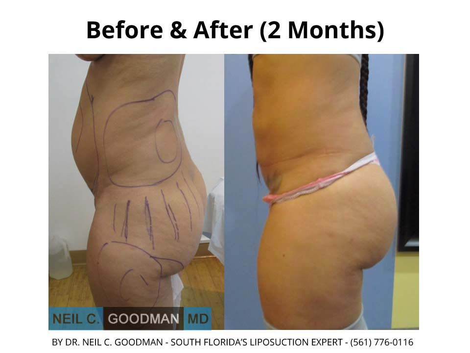 Brazilian Buttlift after and before