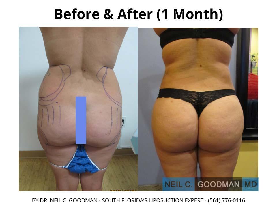 Brazilian Butt Liposuction