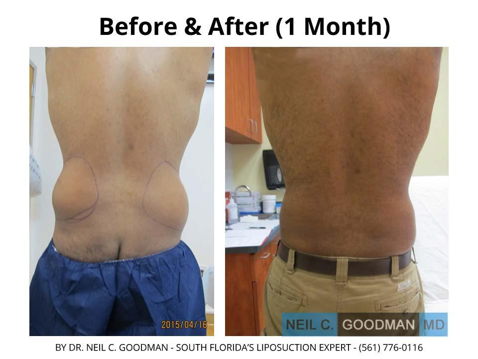 Large volume Liposuction men
