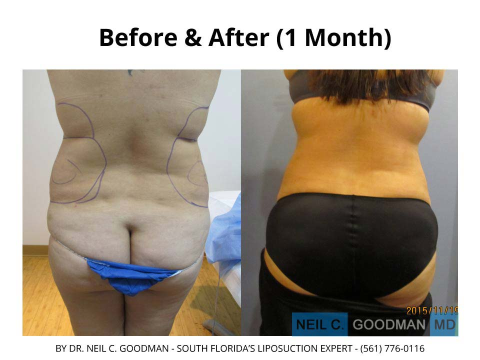 Large volume Liposuction results2