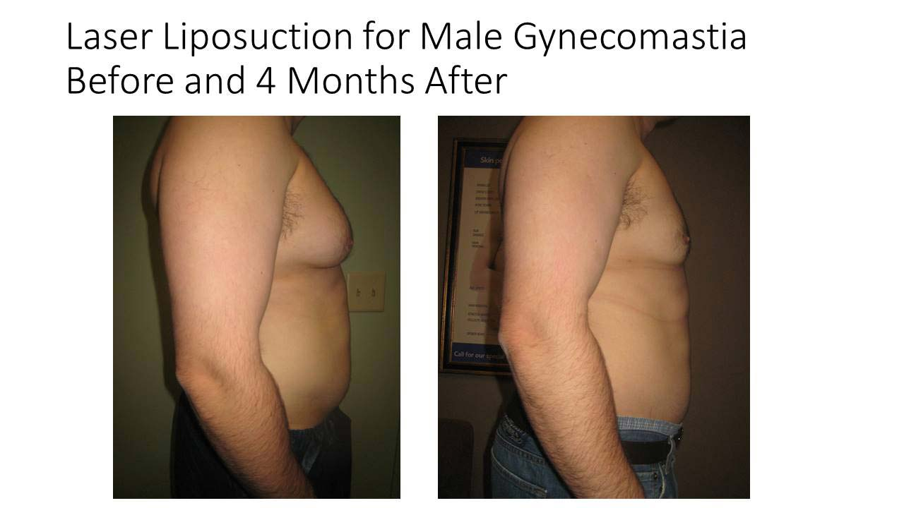Laser Liposuction of Male