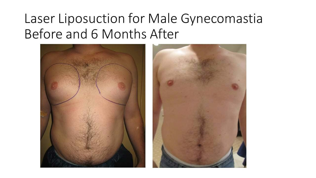 Laser Liposuction Male Gynecomastia results