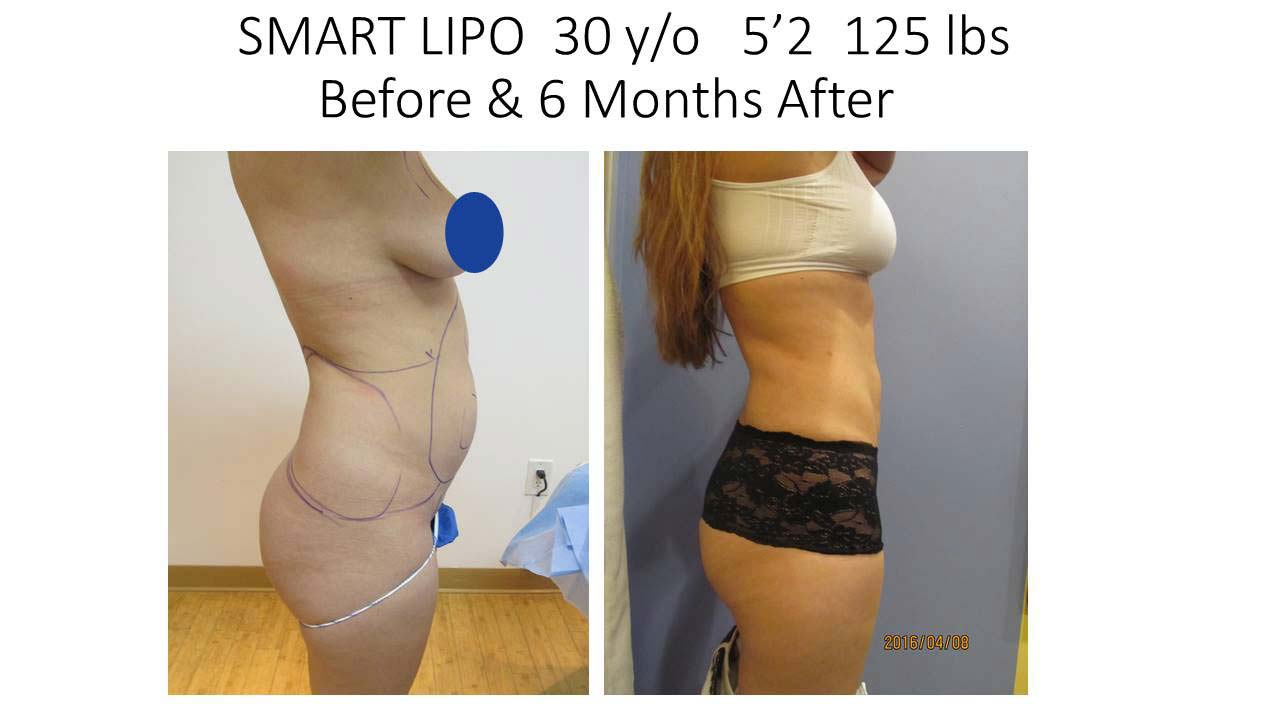 Smartlipo 30 Y/O Woman photo