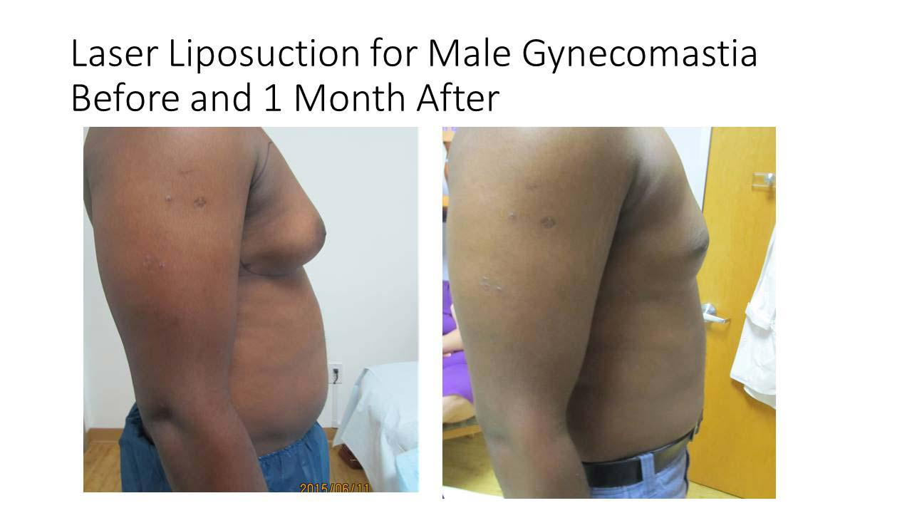 Laser Lyposuction Male Gynecomostia
