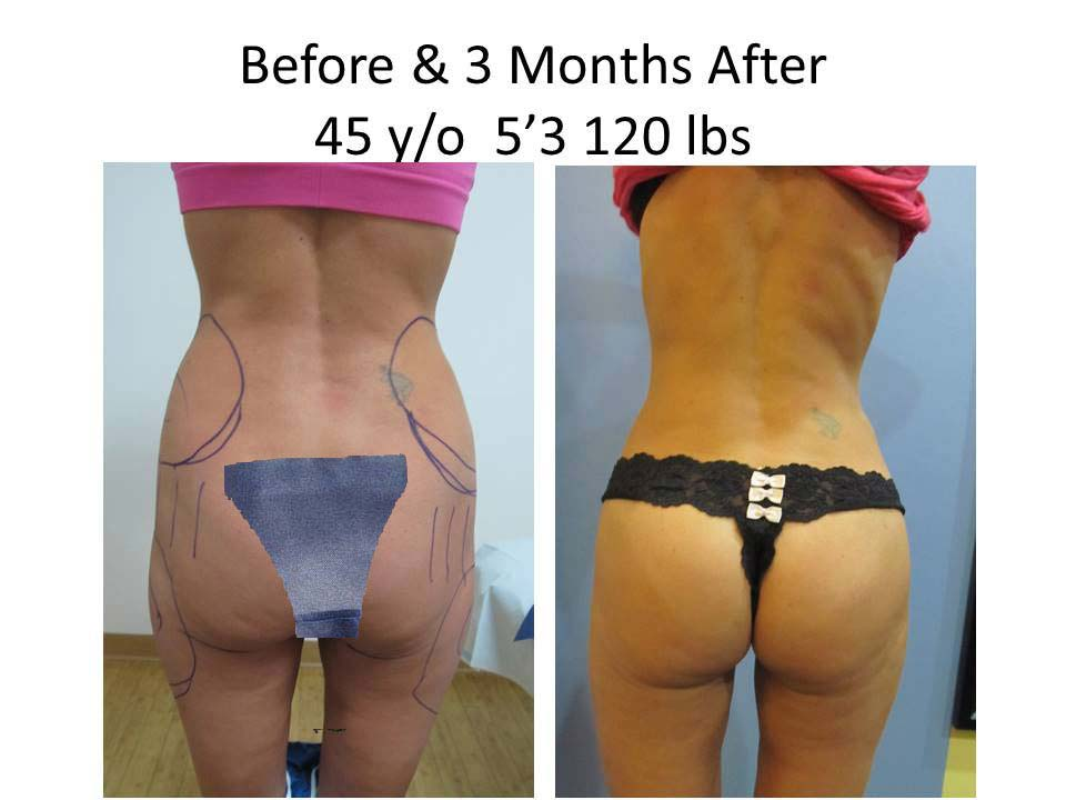 Brazilian Buttlift woman 3 Months