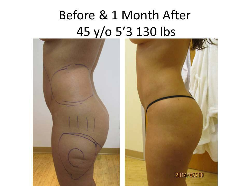 Brazilian Buttlift results1