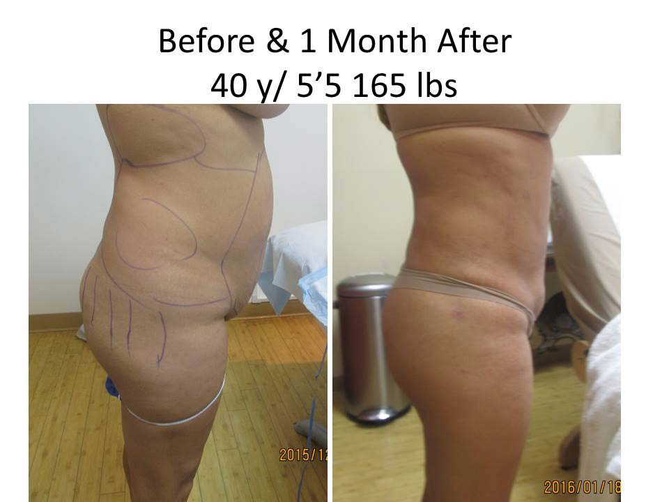 Brazilian Buttlift 1 Month