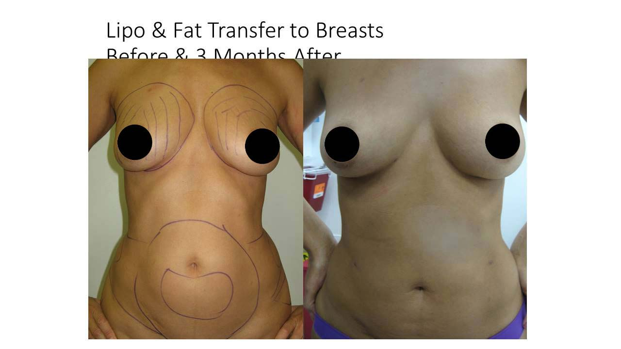 Lipo And Fat Transfer breasts women 3 Months