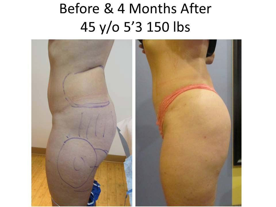 Brazilian Buttlift 45 Y/O results
