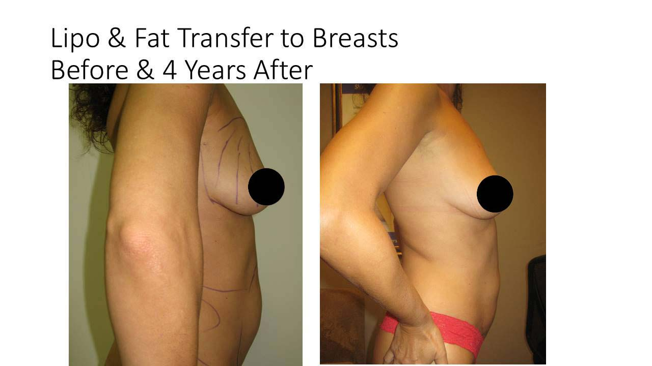 Lipo And Fat Transfer breasts woman 4 Years