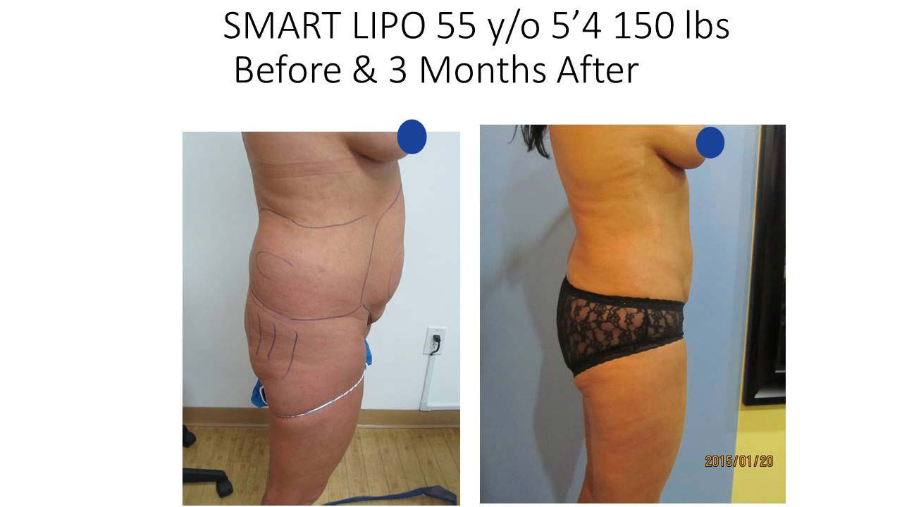 Smartlipo of 55 Y/O woman 3 Months