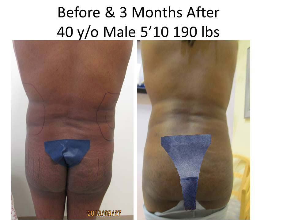 Brazilian Buttlift 40 Male Y/O
