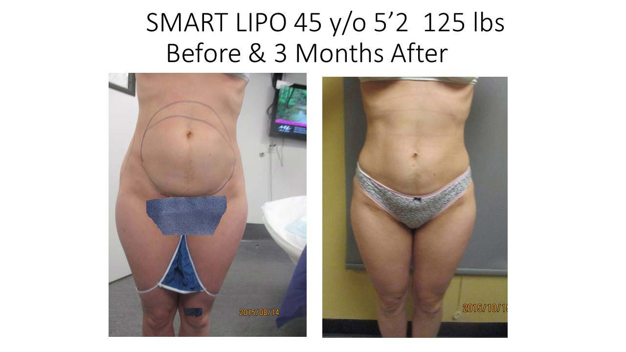 Smartlipo 45 Y/O woman 3 Month photo