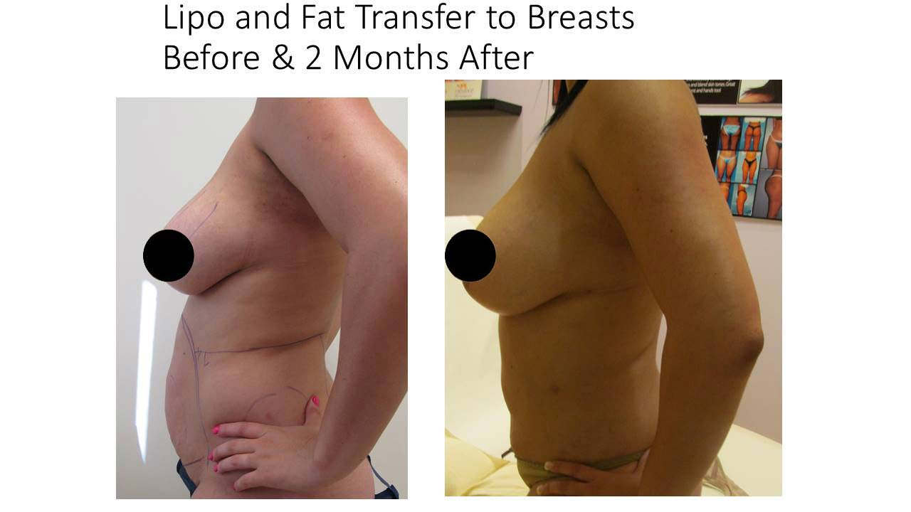 Lipo and Fat Transfer to breasts