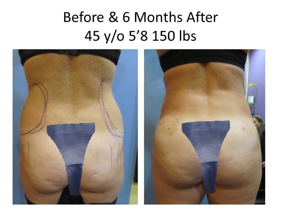 Brazilian Buttlift of 45 Y/O before and after